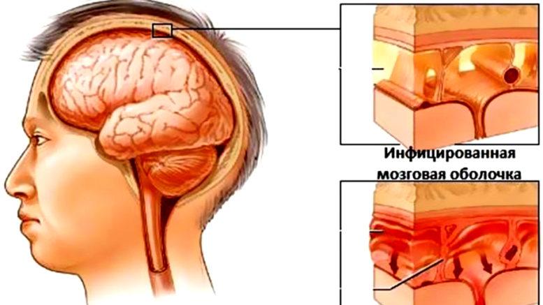 Признаки раннего нейроборрелиоза